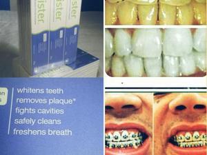 Clareamento Caseiro Clareador Dental Whiteness 16 Posot Class