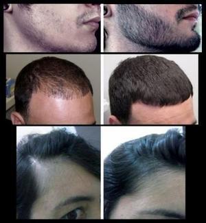Kirkland Minoxidil 5% Crescimento Capilar (Barba e Cabelo da