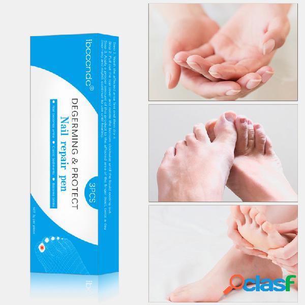 Solução de reparo de onicomicose de 3 ml Unhas Tratamento